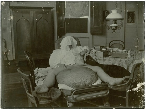 Black and white photograph of an adult male showing elephantiasis of the scrotum wearing a towel as a hood to cover the face