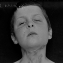 Black and white photograph of a young boy with bare torso showing scarring to neck and chest from tuberculosis infection