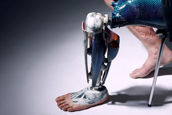 Colour photograph of a 3D printed nylon prosthetic leg as worn by an amputee