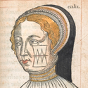 Hand coloured illustration of facial wound dressing