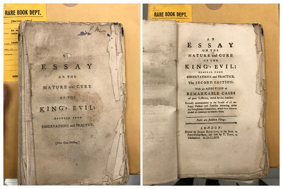 Title pages of the second edition of an Essay of the Nature and Cure of Scrophulous Disorders