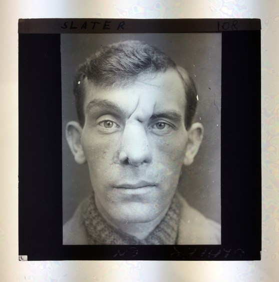 A photographic lantern slide from 1918 showing a soldier following reconstructive facial surgery